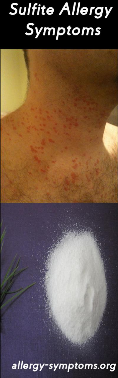 Sulfite Allergy Symptoms And Diagnosis Allergy Symptoms Org