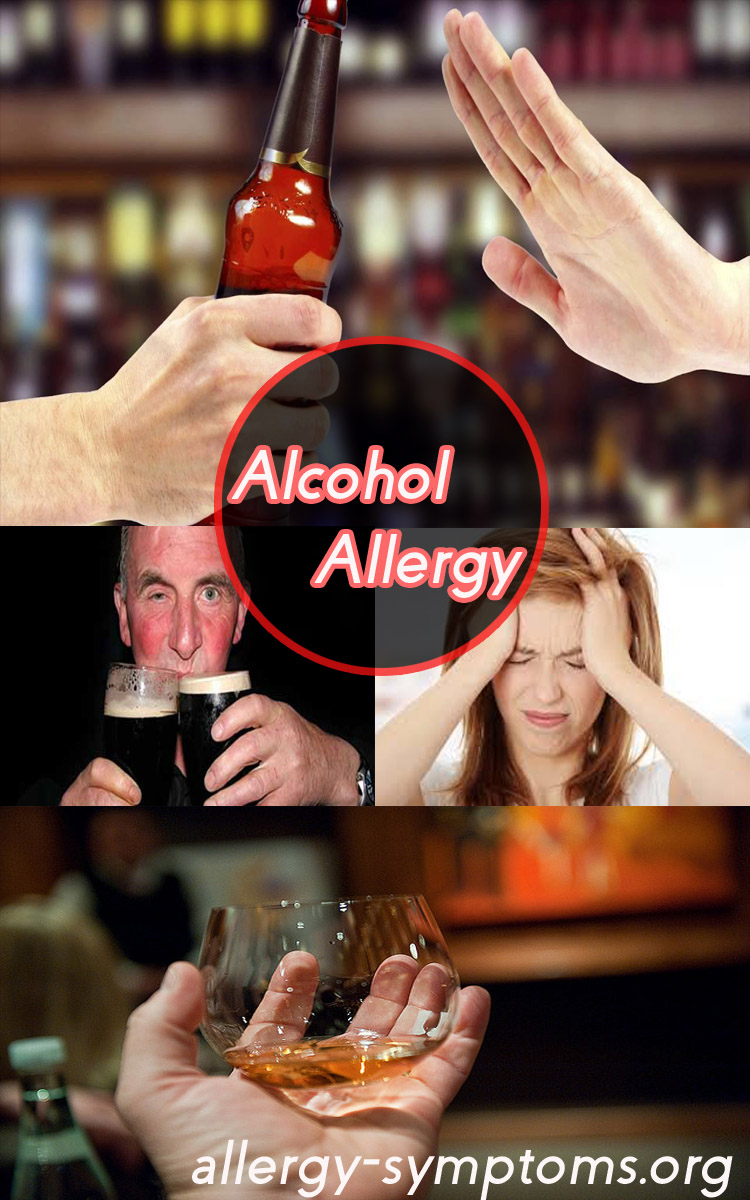 Alcohol Allergy Symptoms And Diagnosis Allergy Symptoms Org
