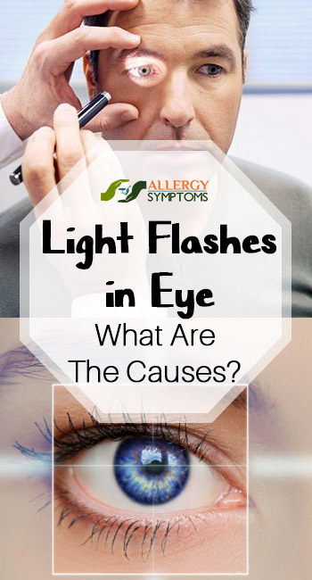 Light Flashes In Eye What Are The Causes Allergy Symptoms